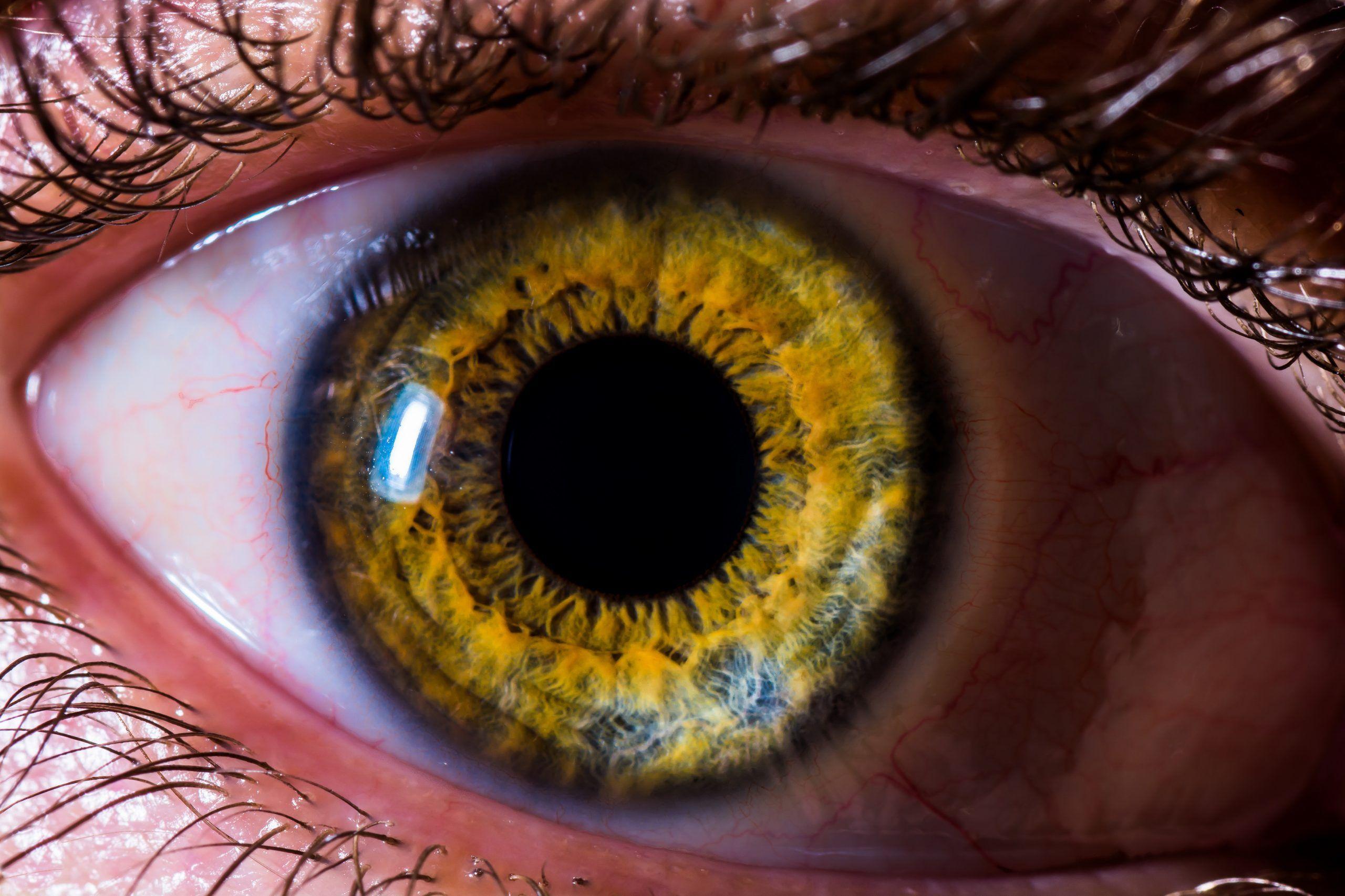 Dilatacion pupila